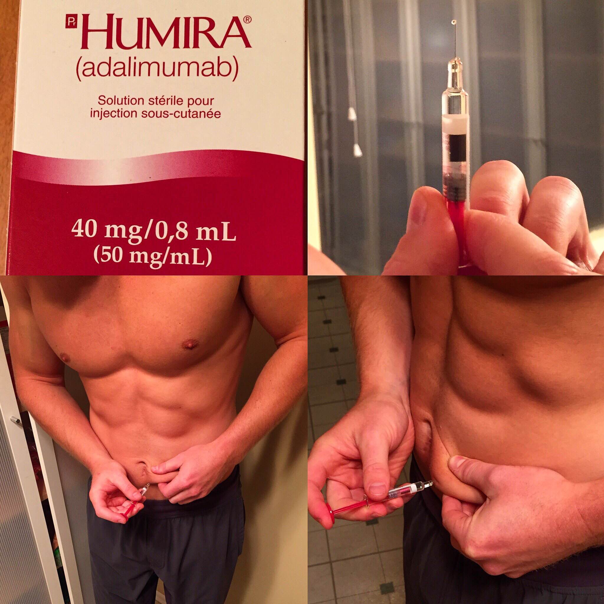 how often to inject testosterone propionate