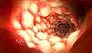 Inflamed Colon